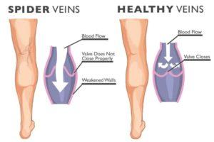 spider veins