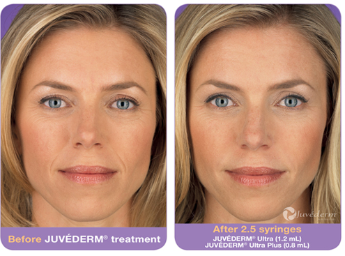 Juvéderm Fillers in Doylestown, PA - Face and Lip Fillers