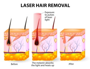 best hair removal