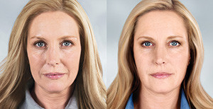 sculptra cosmetic injectables