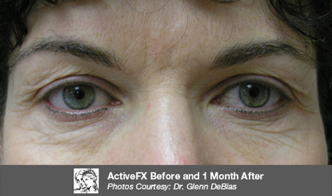 ActiveFX Before and After Photos